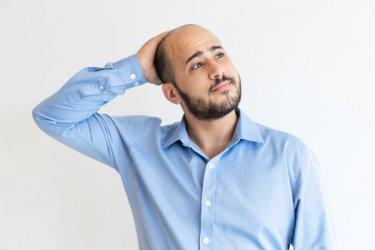 Masz problem z łysieniem? Dowiedz się więcej na temat przeszczepu włosów metodą FUE