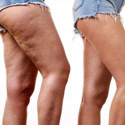 Leczenie trądziku, domowe sposoby na cellulit
