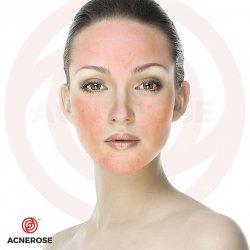Kosmetyki na trądzik różowaty. Przedstawiamy skuteczne