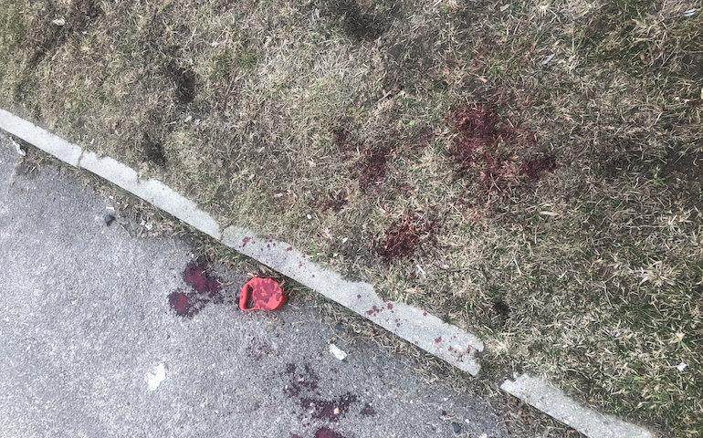 Agresywny pies zaatakował człowieka i innego czworonoga