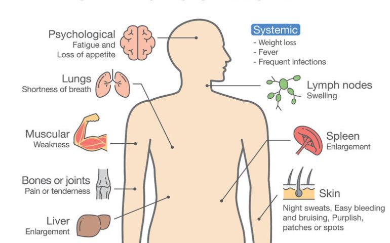 Co musisz wiedzieć o białaczce?